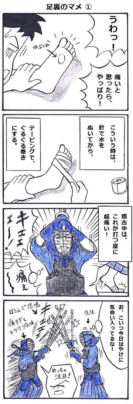 足裏のマメその壱