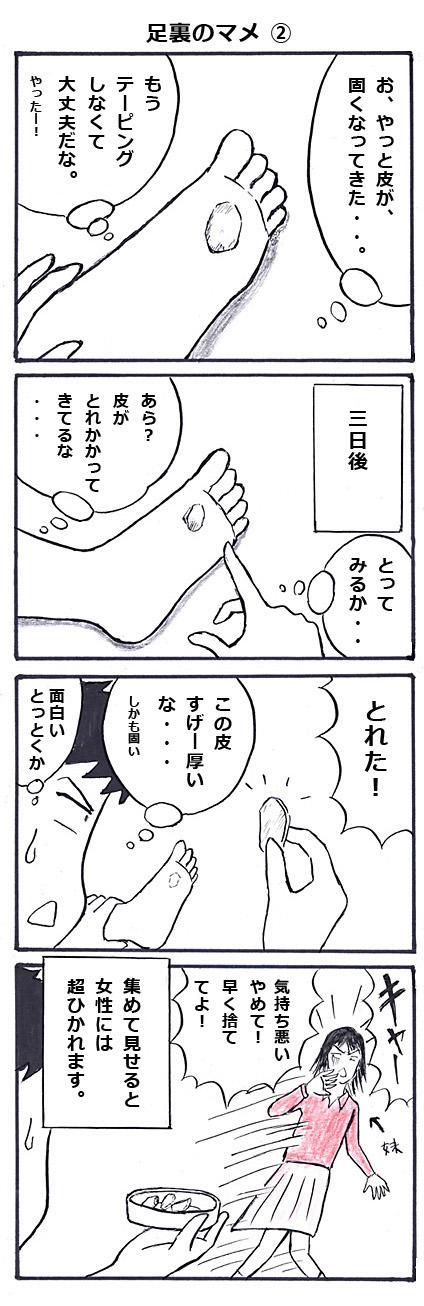 足裏のマメ その弐